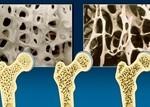 osteoporosi 2
